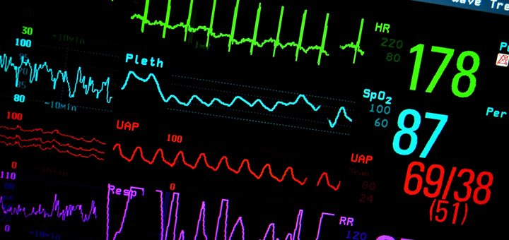 Angor et infarctus du myocarde